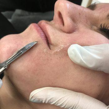 Derma-plane facial
